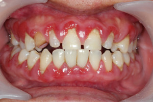 Your West Mobile dentist can help you recognize the signs of periodontal disease.