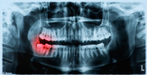 X-ray of wisdom tooth bottom right