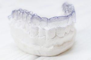 Invisalign on dental mold for bite problems.
