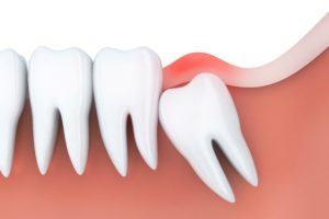 Model of wisdom tooth pain